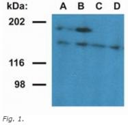 AM26039PU-N - Ubinuclein-1 (UBN1)