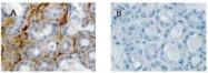 AP23448SU-S - Relaxin receptor 1 / RXFP1