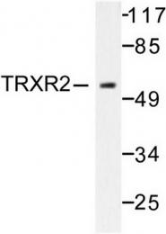 AP06468PU-N - Thioredoxin reductase 2 / TXNRD2