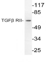 AP06349PU-N - TGFBR2