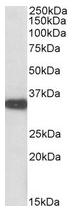 AP23666PU-N - Aminoacylase-2 / ACY2