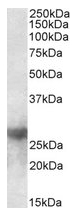 AP23674PU-N - Galectin-3