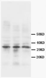 AM20594PU-N - Calponin-1