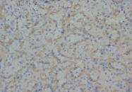 AM20684PU-N - Vimentin