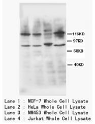 AP23408PU-N - CD120b / TNFR2