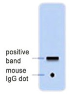 AM20710PU-N - GFP