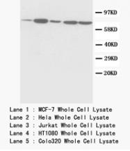 AP23395PU-N - Complex II subunit 70 kDa Fp