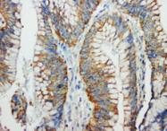 AP23382PU-N - CD178 / Fas Ligand