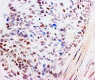 AP23379PU-N - Glucocorticoid receptor