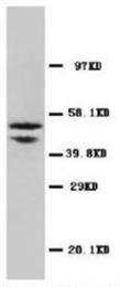 AP23361PU-N - SMAD2 / SMAD3