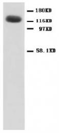 AP23337PU-N - NMDA Receptor 1