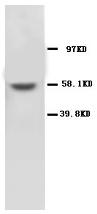 AP23329PU-N - MMP-16