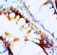 AP23327PU-N - NPY receptor 1 / NPY1R