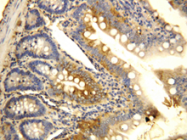 AP23322PU-N - CD196 / CCR6