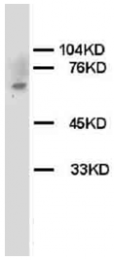 AP23321PU-N - CHK2