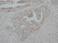 AP23318PU-N - Tumor protein p73 (TP73)