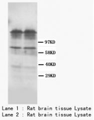 AP23315PU-N - Dopamine D1 receptor