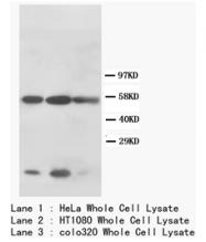 AP23293PU-N - Cytokeratin 8