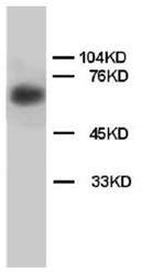 AP23277PU-N - Lamin Beta