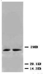AP23264PU-N - CDKN1B / KIP1