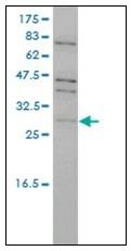 AM21017PU-N - TP53RK