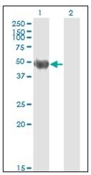 AM21000PU-N - Cytokeratin 20