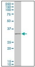 AM21023PU-N - RNF144B