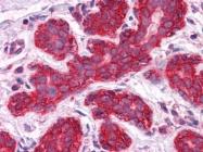 AM20908PU-N - Junction plakoglobin