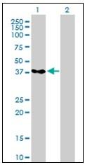 AM20926PU-N - PCBP2 / hnRNP-E2