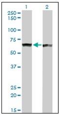 AM20930PU-N - PTBP1 (PTB)