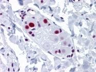 AM20942PU-N - U1 snRNP protein A