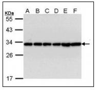 AP23582PU-N - 14-3-3 protein beta/alpha