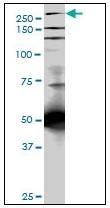 AM20951PU-N - Talin-1 (TLN1)