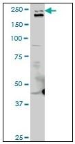 AM20952PU-N - Talin-1 (TLN1)