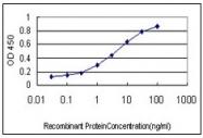 AM20956PU-N - Splicing factor 1 (SF1)