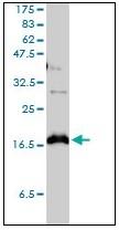 AM20969PU-N - Claudin-1 / CLDN1