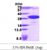 AR09740PU-L - VAMP-associated protein B/C (VAPB)