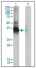 AM20996PU-N - LDLRAP1