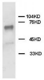 AP23324PU-N - PTPN11 / PTP2C