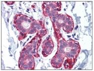 AP23155PU-N - alpha skeletal muscle Actin / ACTA1