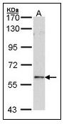 AP23680PU-N - FOXN1