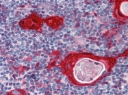 AM20889PU-N - 14-3-3 protein sigma / SFN