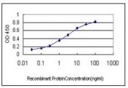 AM20892PU-N - Glycogenin-1 (GYG1)