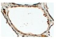 AP23774PU-N - Dual oxidase 1