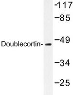 AP06599PU-N - Doublecortin