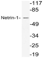 AP20679PU-N - Netrin-1
