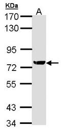 AP23776PU-N - XRCC1