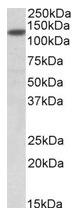 AP23761PU-N - SIRT1