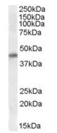 AP23694PU-N - NKX2-5
