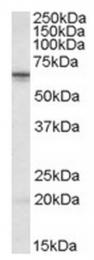 AP23695PU-N - STK39 / SPAK